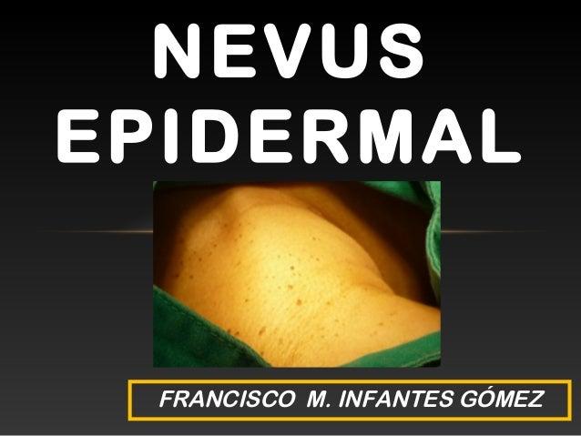 NEVUS EPIDERMAL FRANCISCO M. INFANTES GÓMEZ