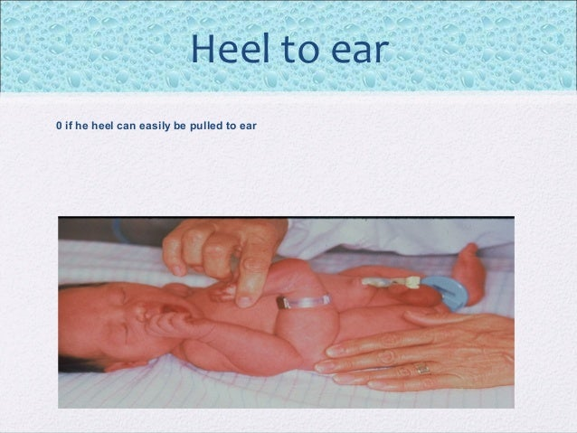 Infant clit pics