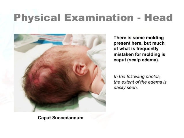Newborn Assessment by Hadi Hospital NICU.