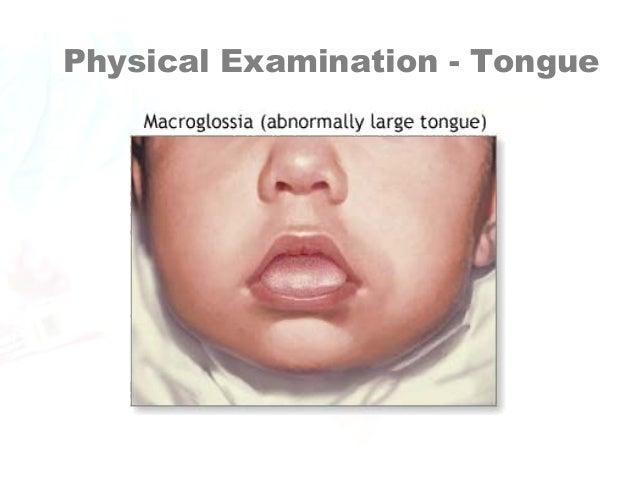 Adult asian assessment jaundice physical skin