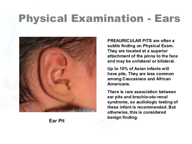 List of Synonyms and Antonyms of the Word: ear pit