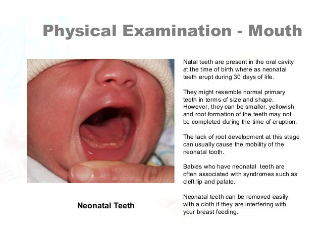 September 2016 - Pediatric Pearls – AHA Neonatal Resuscitation ...