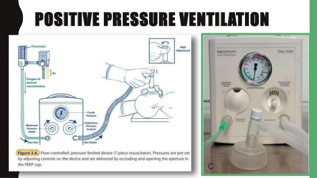 delivery room cpap The choice of cpap vs prophylactic surfactant should be based on institutional  experience, local practices and comfort with delivery room.