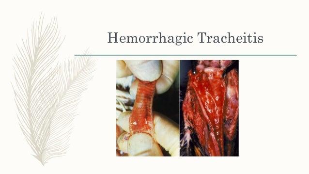 Diphtheritic Laryngo-tracheitis