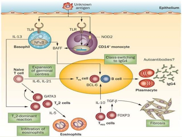 igg4 sclerosing disease response to corticosteroid treatment