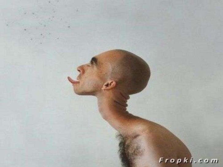 real human deformities