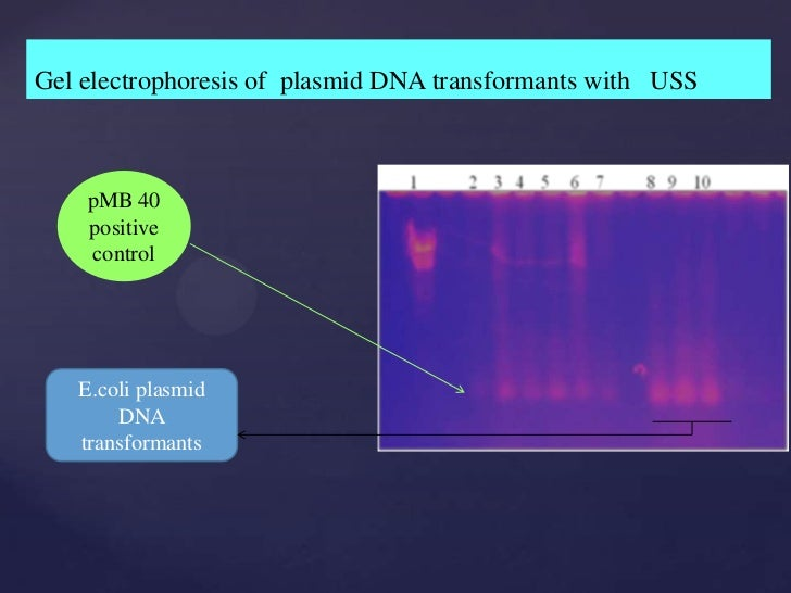 Dna thesis