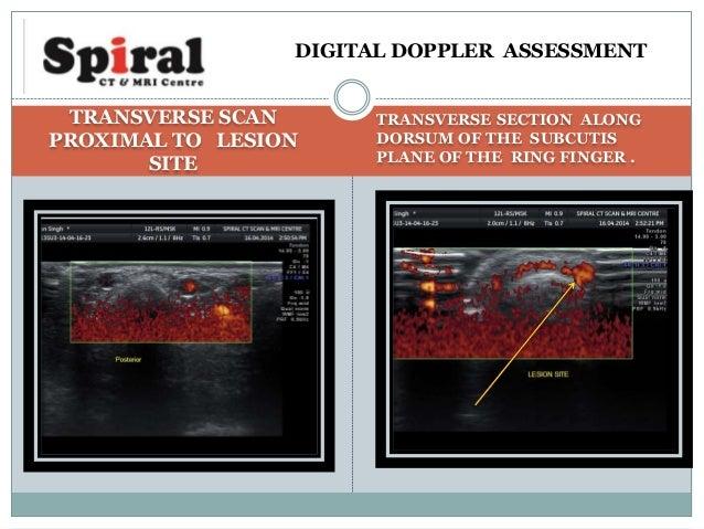 diagnostic ultrasound rumack 5th edition pdf