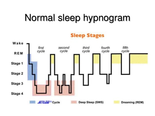 dreams and the stages of sleep These sleep stages progress in a cycle from stage 1 to rem sleep, then the cycle starts over again with stage 1 we spend almost 50 percent of our total sleep time in stage 2 sleep, about 20 percent in rem sleep, and the remaining 30 percent in the other stages.