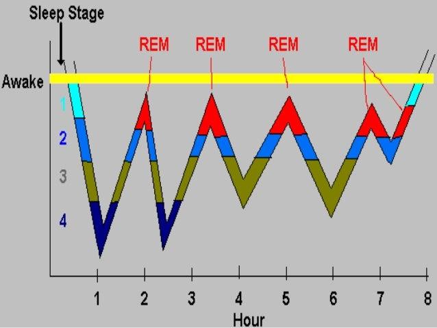 Normal Sleep Architecture