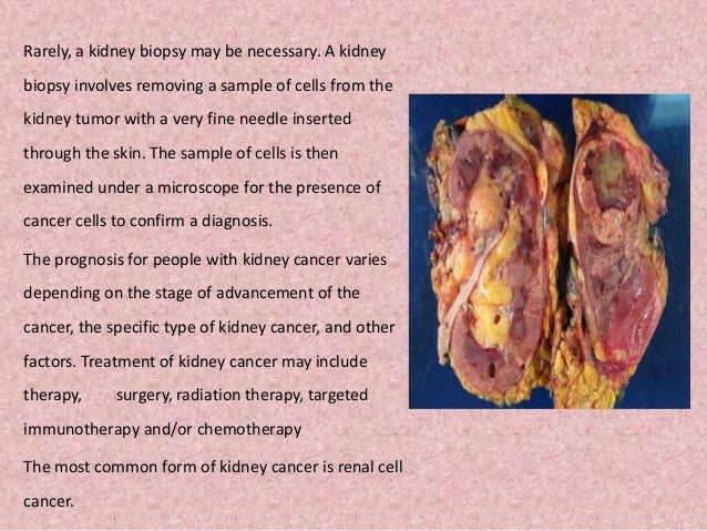 Kidney Cancer Renal Cancer