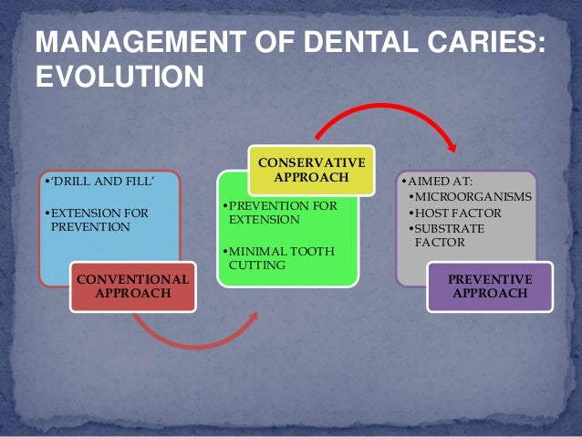 Caries vaccine for Art a minimal intervention approach to manage dental caries