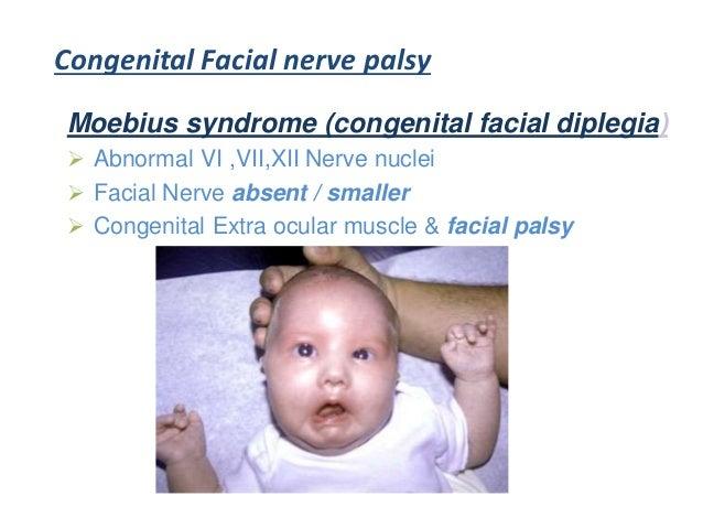 Congenital facial nerve palsy