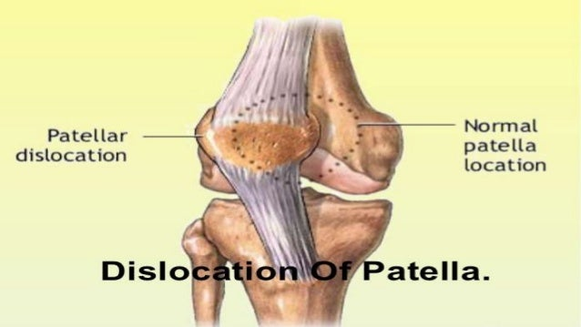 patella dislocation Patella kneecap dislocations kneecap dislocation occurs when the kneecap is moved away from the position it is supposed to be in the kneecap is held over the patellofemoral groove by tendons and ligaments, and if the knee is hit, usually by falling or banging into something, it can be knocked out of place.