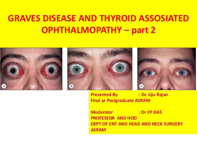 Graves Disease And Thyroid Eye Disease With Orbital Decompression