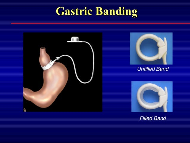 patho gastric bypass To date, roux-en-y gastric bypass is the most effective bariatric procedure that consistently leads to weight reduction and improvement of gerd symptoms in patients undergoing direct gastric bypass and among those converted from restrictive bariatric procedures to gastric bypass.