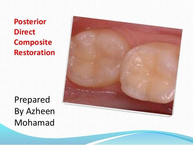 Posterior Direct Composite Restoration Prepared By Azheen Mohamad