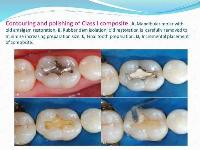 post operative instructions for amalgam restoration