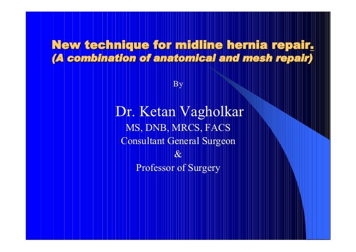 New technique for midline hernia repair.(A combination of anatomical and mesh repair)                      By           Dr...