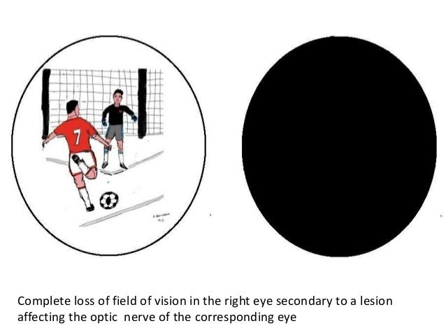 Visual Field Defects
