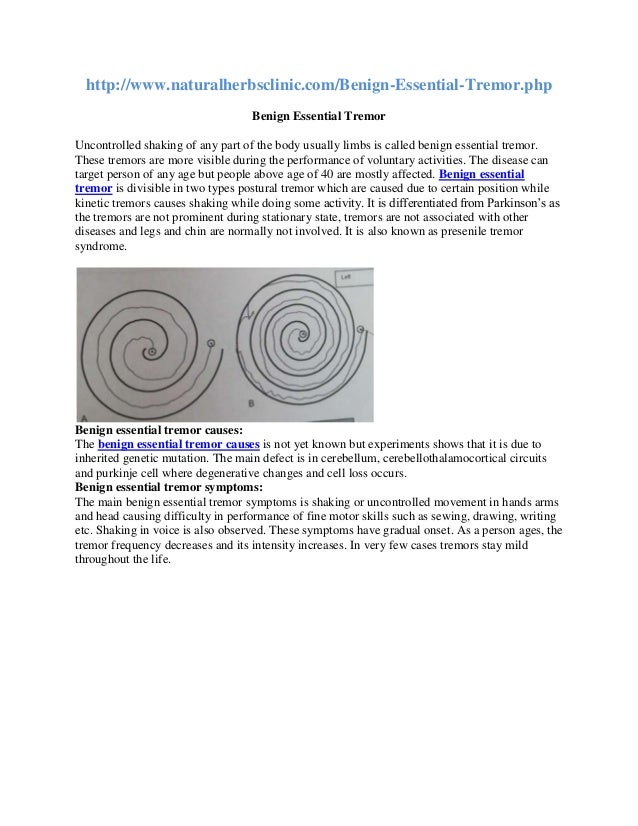 http://www.naturalherbsclinic.com/Benign-Essential-Tremor.php Benign Essential Tremor Uncontrolled shaking of any part of ...
