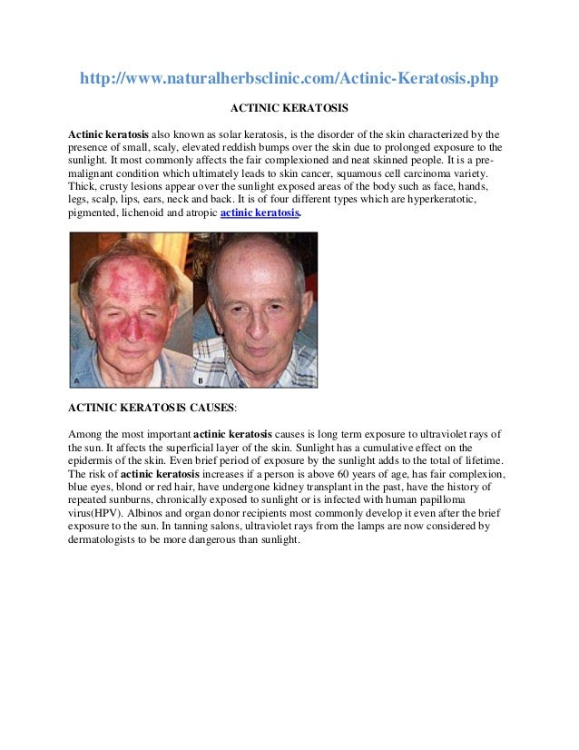http://www.naturalherbsclinic.com/Actinic-Keratosis.php ACTINIC KERATOSIS Actinic keratosis also known as solar keratosis,...