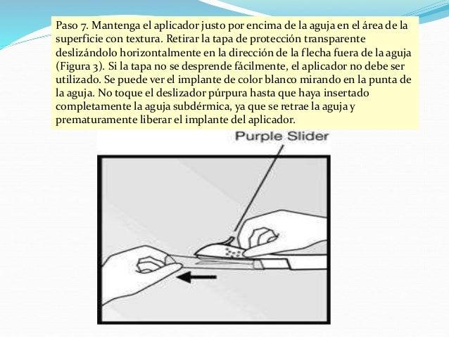 Paso 8. Con la mano libre, estirar la piel alrededor del sitio de inserción con el pulgar y el dedo índice (Figura 4). Pas...