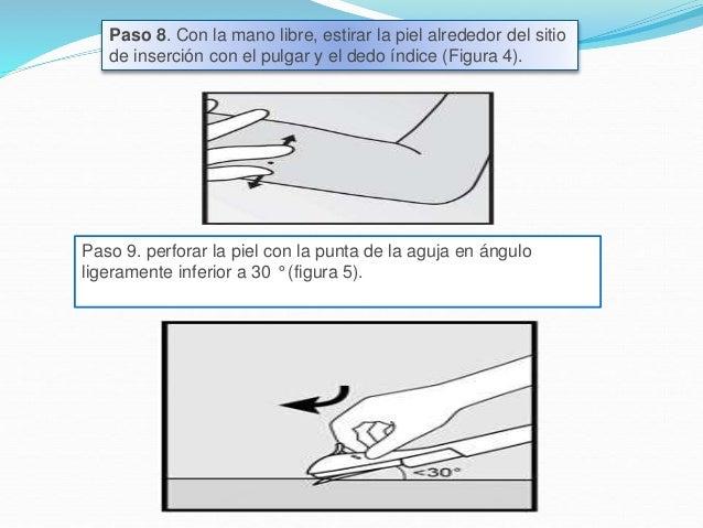 Paso 10. Bajo el aplicador a una posición horizontal. Mientras levanta la piel con la punta de la aguja (Figura 6), deslic...