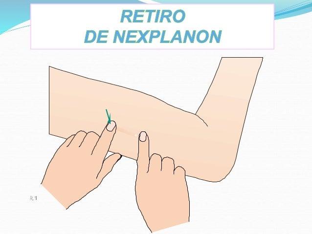 Nexplanon usmp