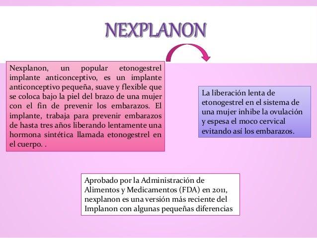 Nexplanon, un popular etonogestrel implante anticonceptivo, es un implante anticonceptivo pequeña, suave y flexible que se...