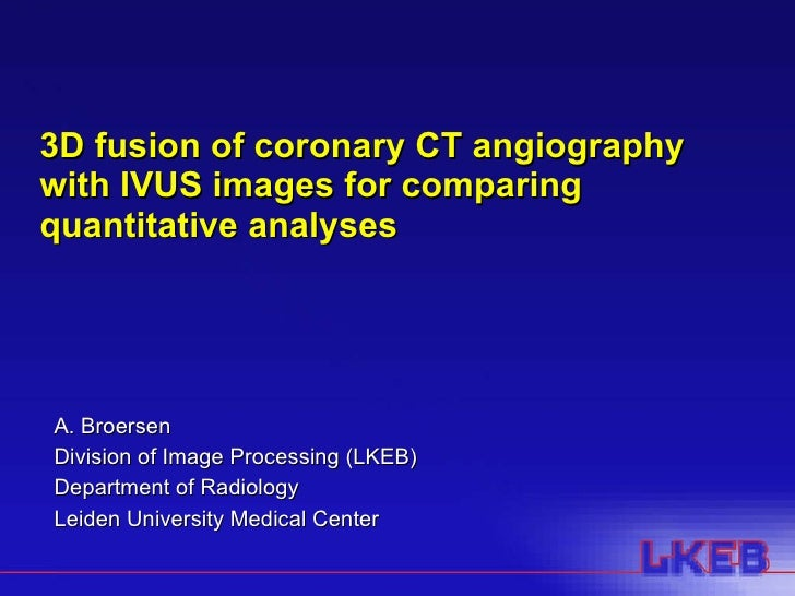 3D fusion of coronary CT angiography with IVUS images for comparing quantitative analyses A. Broersen Division of Image Pr...
