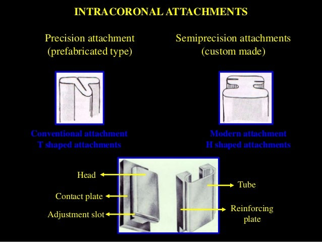 Attachments In Prosthodontics