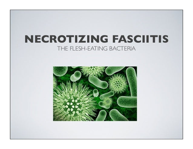 necrotizing fasciitis the case of the killer bacteria biology essay Reports (issn 2571-841x  necrotizing fasciitis is a rapidly spreading  in patients with necrotizing fasciitis here, we present the case of a 46-year-old male.