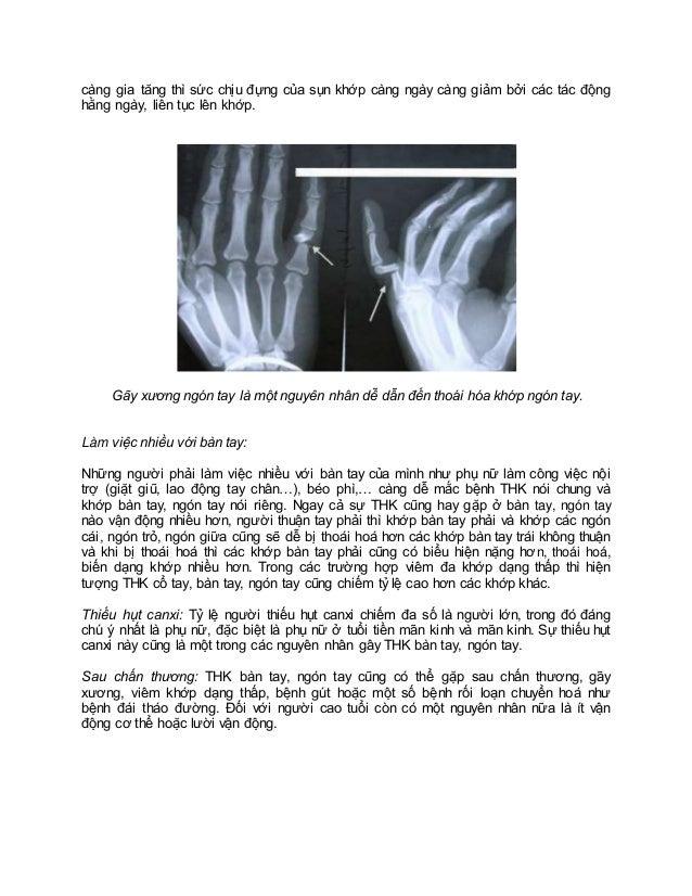 Nguyên nhân dẫn đến thoái hóa khớp bàn tay, ngón tay Slide 2