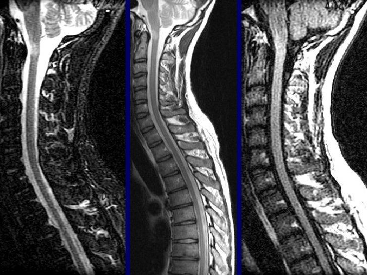NHIỄM KHUẨN CỘT SỐNG• Có chiều hướng gia tăng:70% các nhiễm  khuẩn xương khớp.• Chẩn đoán khó, lâm sàng thường muộn.• Lợi ...