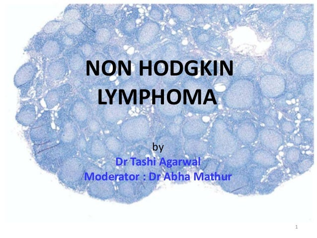 NON HODGKIN LYMPHOMA by Dr Tashi Agarwal Moderator : Dr Abha Mathur 1