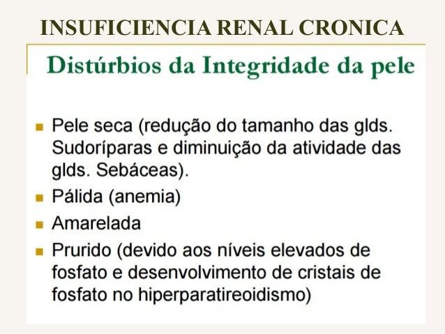 Tratamento • Até que os rins estejam funcionando somente 10-12% da função renal normal, pode-se tratar os pacientes com me...