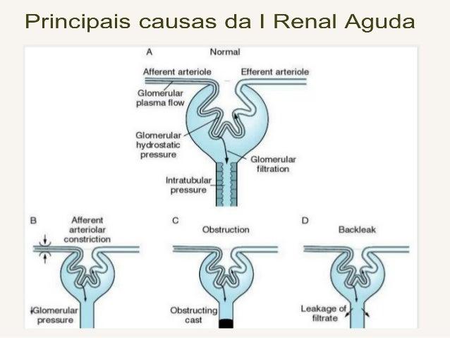 Insuficiência Renal Aguda CLASSIFICAÇÃO: a) Pré – Renal: Diminuição do Fluxo Sangüíneo Renal (vasoconstrição ou pressão pe...