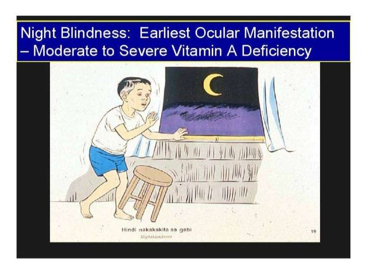 Night blindness (vitamin a)