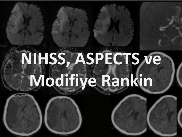 NIHSS, ASPECTS ve Modifiye Rankin