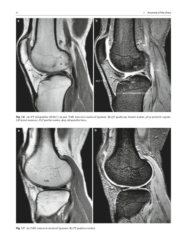 Niitsu magnetic resonance imaging of the knee