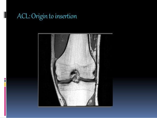 Mri knee joint anatomy vastus medialis medial gastrocnemius sartorius ccuart Images