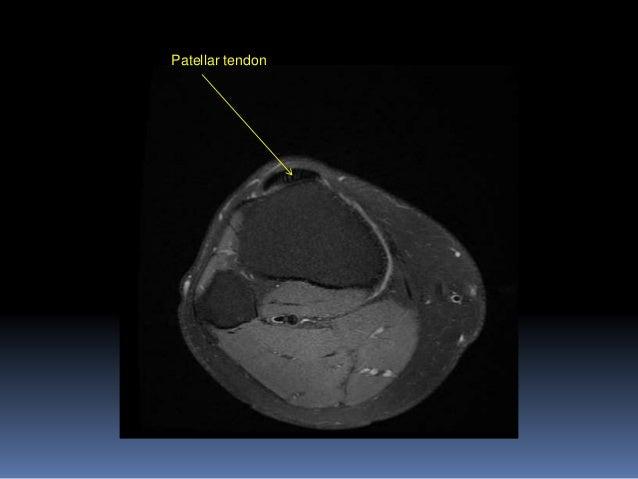 Mri Knee Joint Anatomy