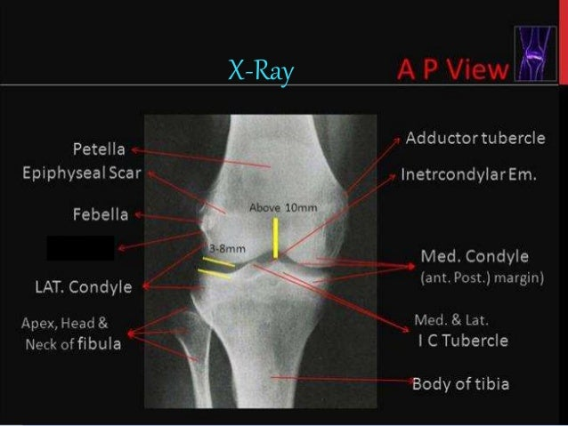 Mri knee joint anatomy x ray 9 ccuart Gallery