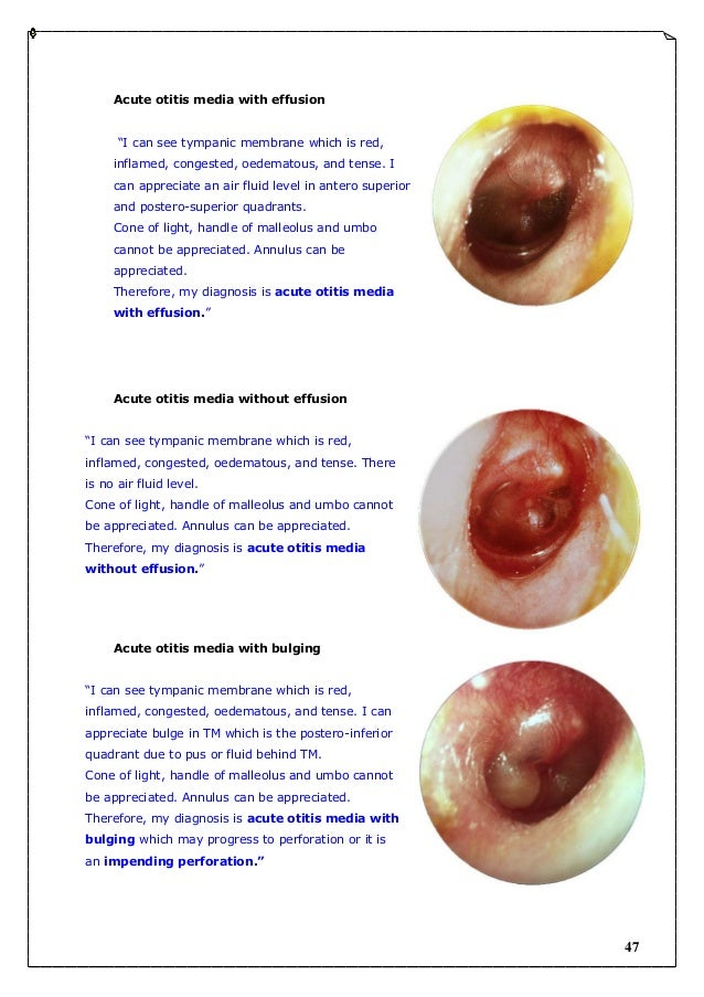 otitis media with effusion essay The purpose of this multidisciplinary guideline is to identify quality improvement opportunities in managing otitis media with effusion (ome) and to create explicit.