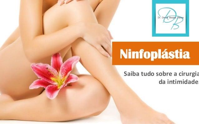 Ninfoplastia Ebook Download