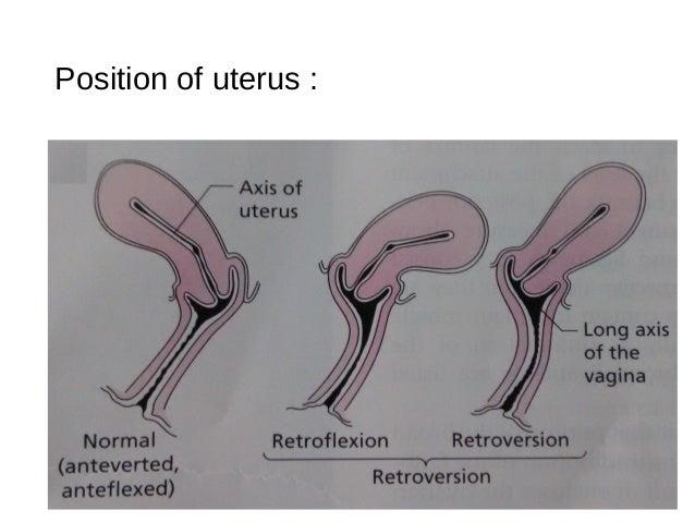 uterin prolaps stor pattter