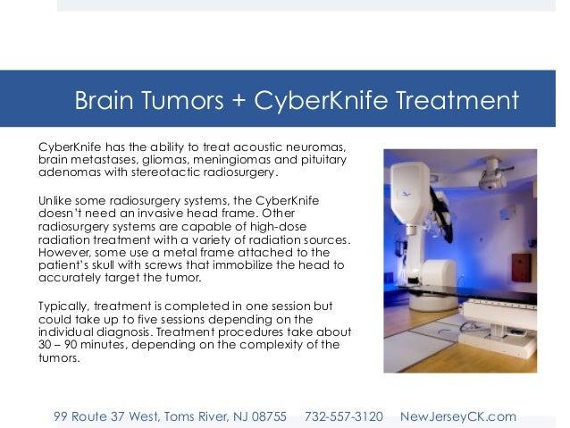 New Jersey Cyberknife Malignant Vs Benign Brain Tumors