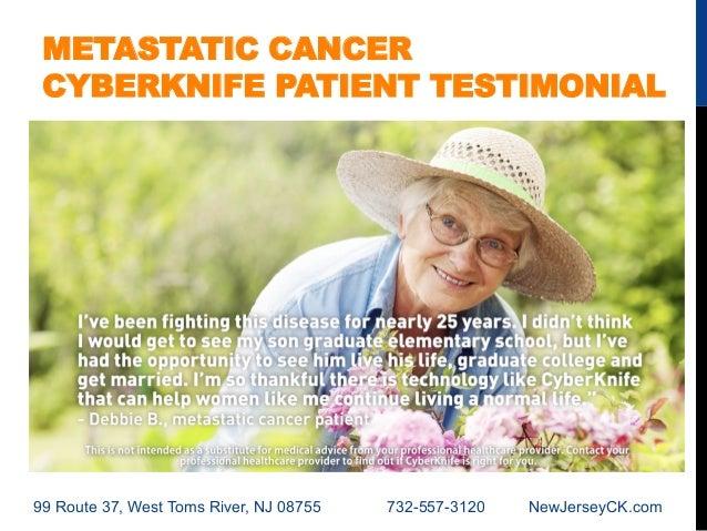 New Jersey Cyberknife Metastatic Cancer