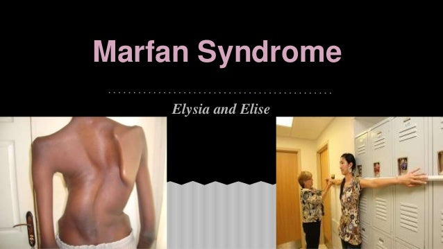 name my disease marfan syndrome Marfan syndrome (mfs) is a spectrum antonin bernard jean marfan, whose name this syndrome marfan described the disease that still bears his name at.